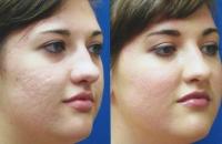 acne-mixto-acne-02