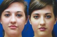 acne-mixto-acne-03