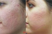 acne-mixto-acne