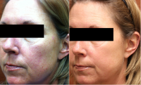 vbeam-laser-face-before-and-after