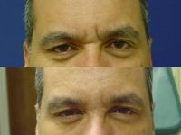 male-botox