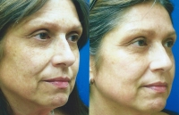 brown-spots-melasma-02