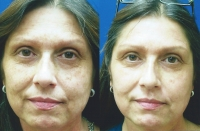 brown-spots-melasma-2