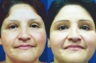 brown-spots-melasma-3