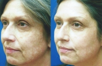 brown-spots-melasma