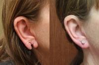 ear-lobe-repair-01