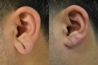 ear-lobe-repair-03