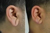 ear-lobe-repair-04
