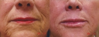 fillers-lower-face-2