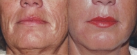 fillers-lower-face