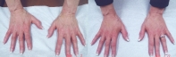 fillers-radiesse-hands