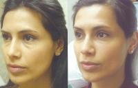 fillers-restylane-eyes-2