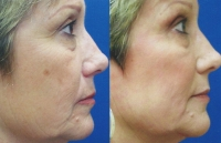 fine-lines-and-wrinkles-mixto-laser-1