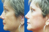 fine-lines-and-wrinkles-mixto-laser-3