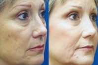 fine-lines-and-wrinkles-mixto-laser-4