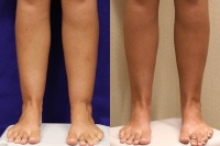 cankle-lipo