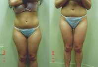 liposuction-lipo-thighs-2