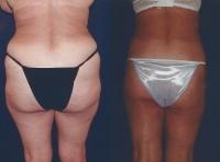 liposuction-lipo-thighs