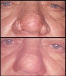 rhynophyma-nose