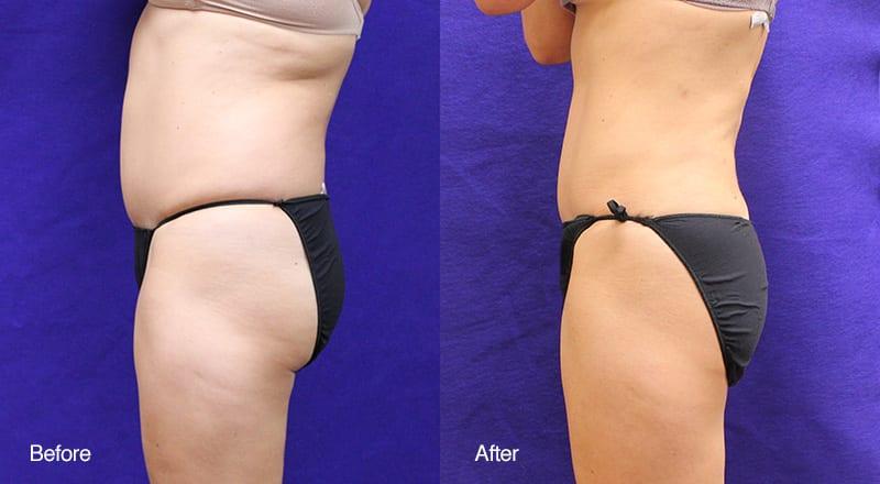 Tumescent Liposuction Patient 1
