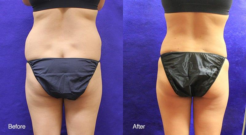 Tumescent Liposuction Patient 2
