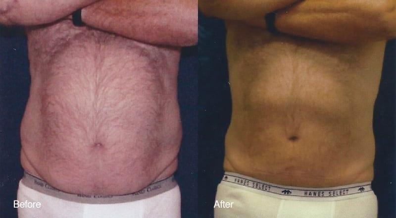 Tumescent Liposuction Patient 3