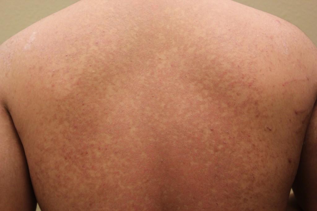 tinea versicolor treatments