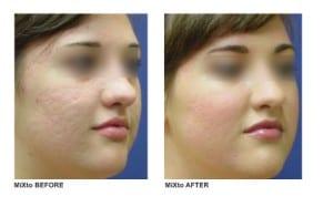mixto-laser-acne-scar