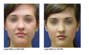 mixto-laser-acne-scar-light