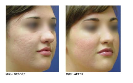 Facial acne scarring laser surgery