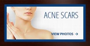 tiles-acne
