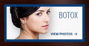 tiles-botox