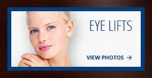 tiles-eyelifts