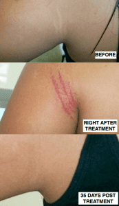 MicroPen before and afters stretchmark