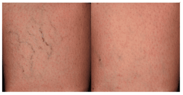Causes and Treatment of Spider Veins