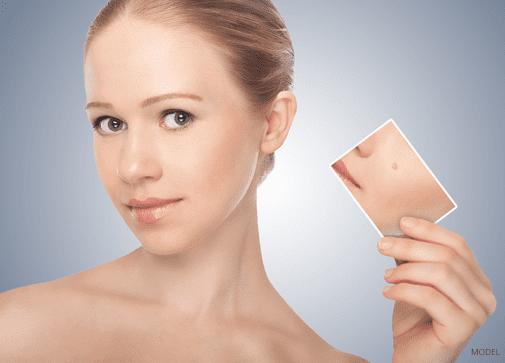 Acne Treatment - Upland, CA | Skin Physicians & Surgeons