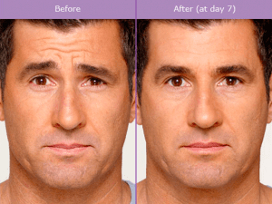 BOTOX® Cosmetic Before & After Photos