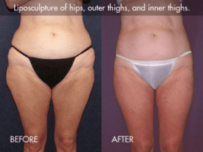 Tickle Lipo™ Results