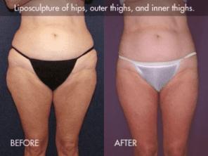 Tickle Lipo™ Results