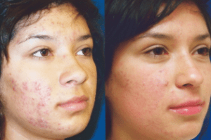 Before and After Acne Laser Treatment
