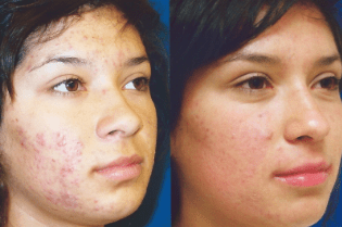 Before And After Acne Laser Treatment Skinps
