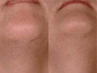 Dr. Lee_laser-hair-removal