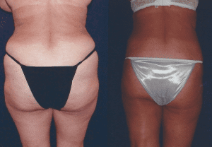 LIPOSUCTION patient by Dr. Lee