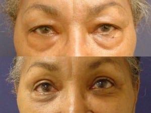 Dr. Sandra Lee patient upper-blephroplasty-aferican-american