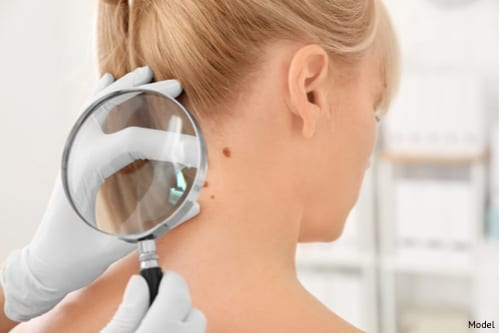 Skin cancer is easily treatable when diagnosed early.